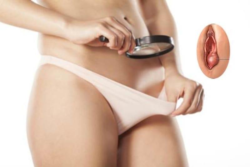 Hasil gambar untuk benjolan pada vagina