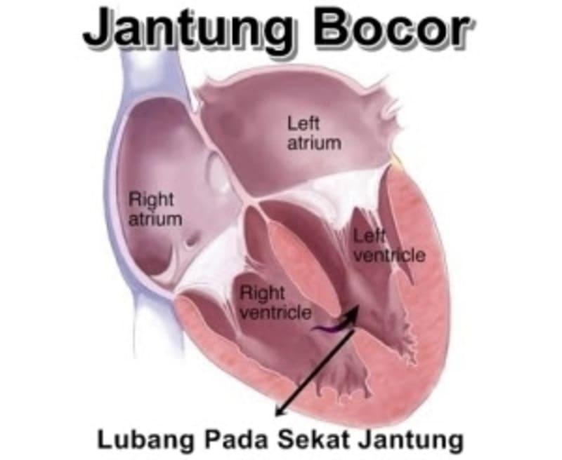 Hasil gambar untuk penyakit jantung bocor