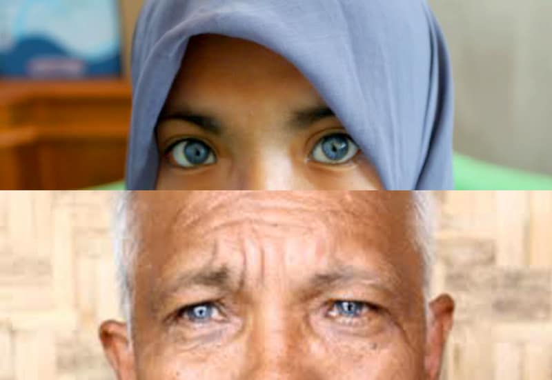 Hasil gambar untuk Asal usul Keturunan Mata Biru di Lamno
