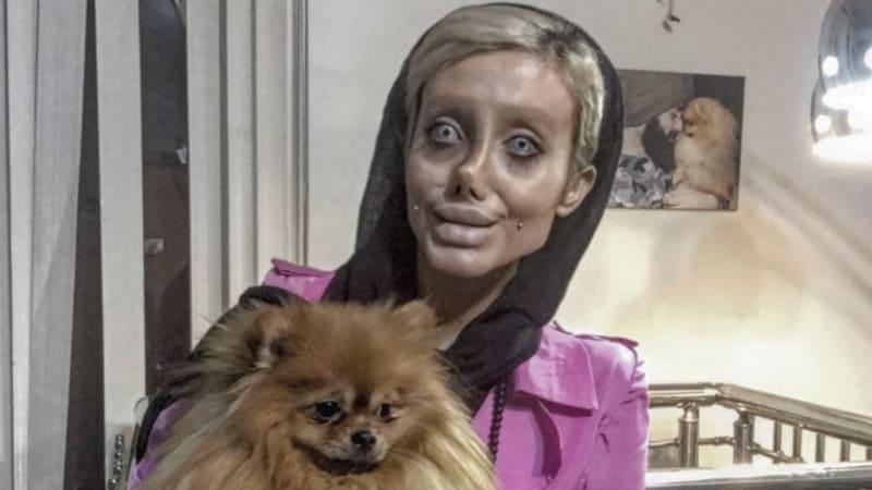 Sahar Tabar, operasi 50 kali agar mirip Jolie