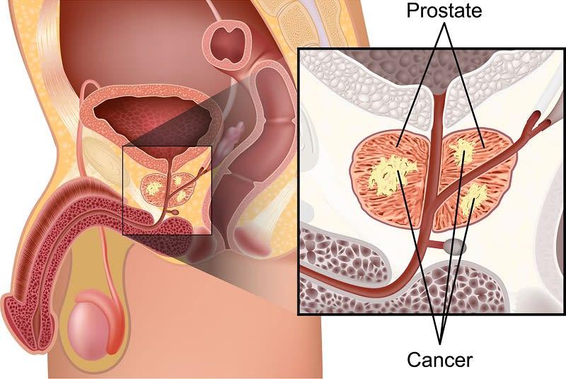 Методы и способы лечения рака простаты