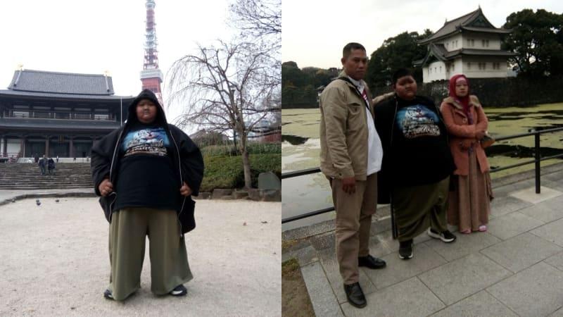 Obesitas Penyebab Emboli Paru