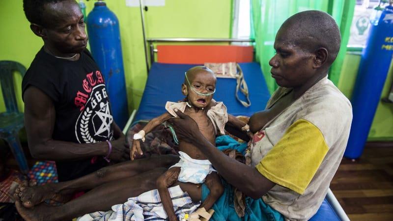 Gizi buruk di Papua