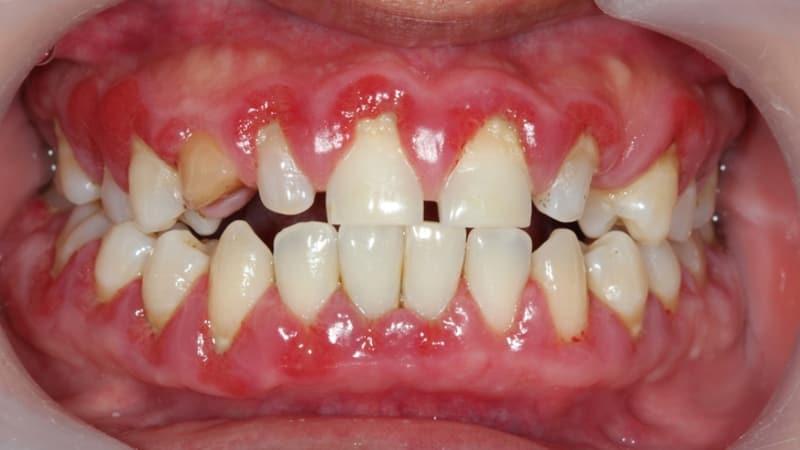 Hasil gambar untuk Radang Gusi (Gingivitis)