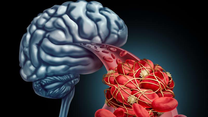 Ilustrasi penyumbatan darah di otak.