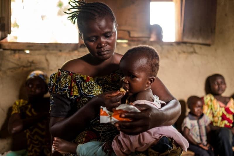 Anak kurang gizi di Kongo