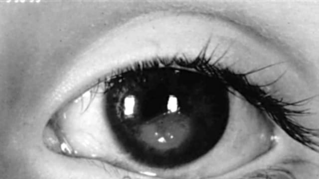 Walatra Sehat Mata, Obat Untuk Menghilangkan Bintik Putih Pada Mata Hitam