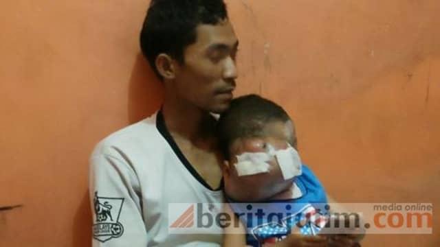 Idap Kanker, Mata Bocah 3 Tahun di Mojokerto Sebesar Kepala