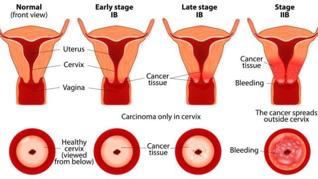 Mengenali Penyakit Kanker Serviks Stadium 3