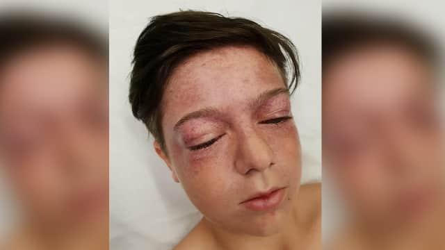 Tiru Aksi Berbahaya di YouTube, Seorang Bocah Hampir Kena Stroke