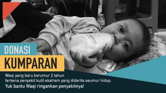 Salurkan Bantuan Anda untuk Bayi Penderita Penyakit Kulit Ekstrem Ini