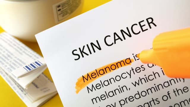 5 Kebiasaan yang Bisa Menyebabkan Kanker Kulit