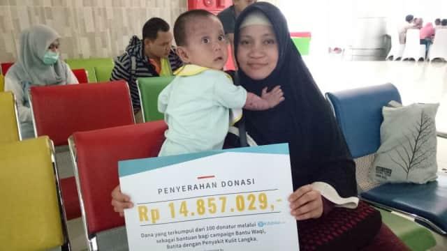 Penyerahan Donasi untuk Balita Waqi Penderita Penyakit Kulit Langka