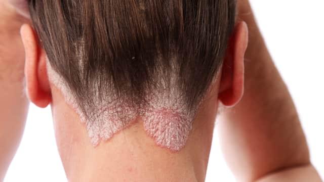 Psoriasis, Penyakit Kulit Kronis yang Bisa Menimpa Siapa Saja