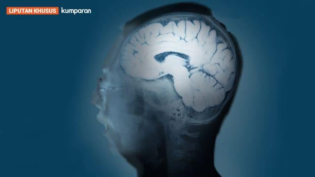 Membedah Metode 'Cuci Otak' Dokter Terawan