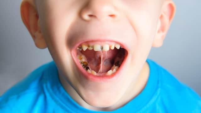 Jenis Makanan untuk Kesehatan Gigi Anak