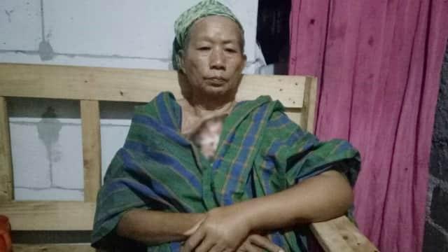 Mari Bantu Ringankan Nenek Solimah Hadapi Kanker Payudara