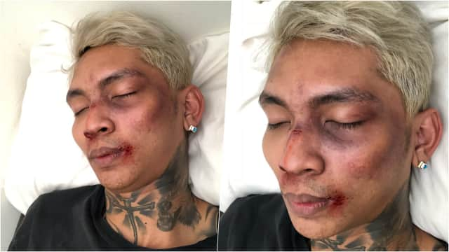 Mengaku Dihajar Fans Lisa Blackpink, Young Lex Dituduh Pakai Makeup